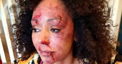 Mel B was on 'edge of self-destruction' during nightmare marriage as video shows her battered and abused